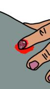 爪剥ぎアイス珍丸