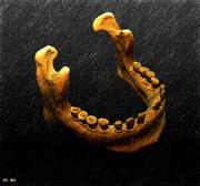 下顎~20120124~