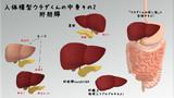 【グロ注意】MikuMikuDance用モデル「肝胆膵forUCHIDA」