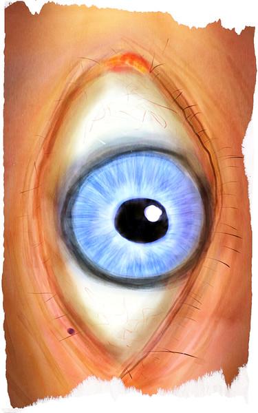 0806-眼