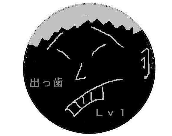 出っ歯 Lv1